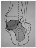 Valgismo calcaneale (visione posteriore)